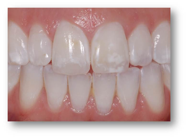 Brookline White Spot Removal Cosmetic Dentistry Boston Smile Center