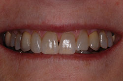 dental implants for 02446 patients