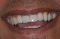 young male's smile after