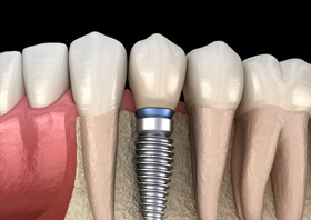 model of dental implant in healthy jawbone