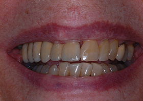after multiple tooth implants