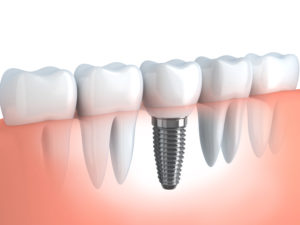 Are you a candidate for dental implants in Boston?