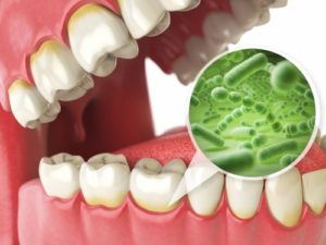 bacteria attacking gums