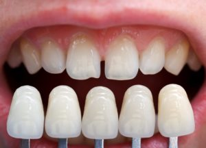 Porcelain veneers compared to imperfect teeth.
