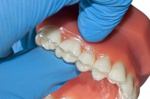dentist placing aligners on a mouth model